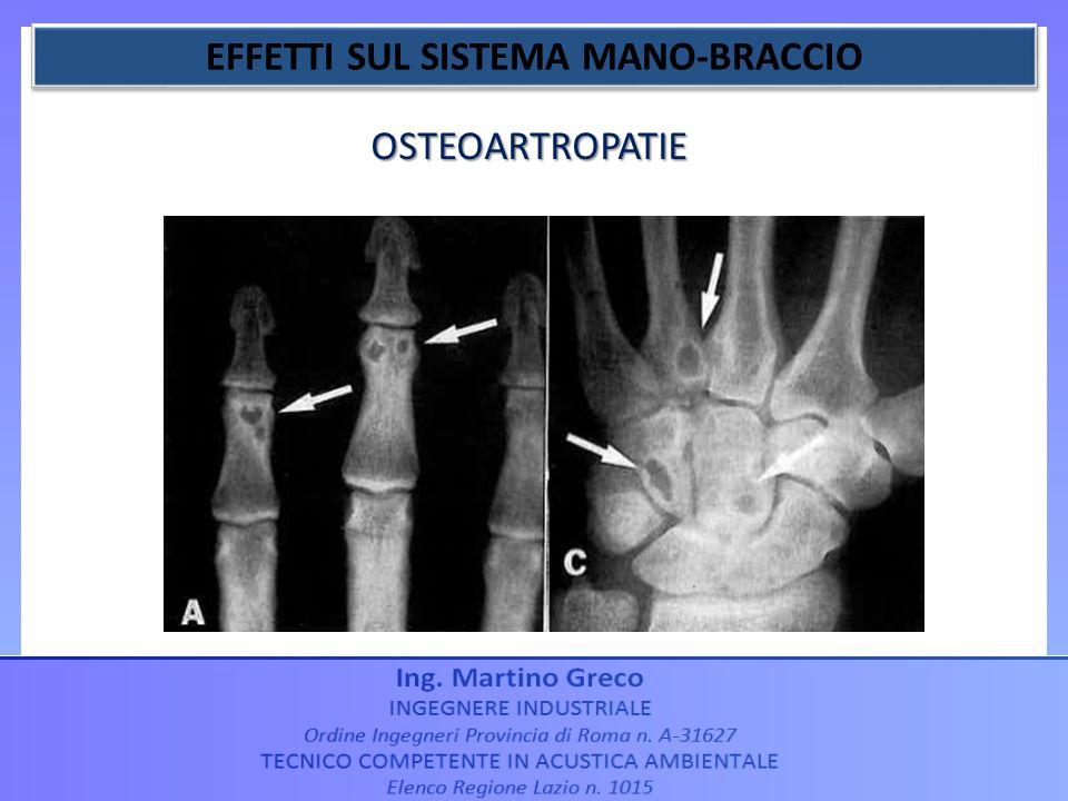 OSTEOARTROPATIE