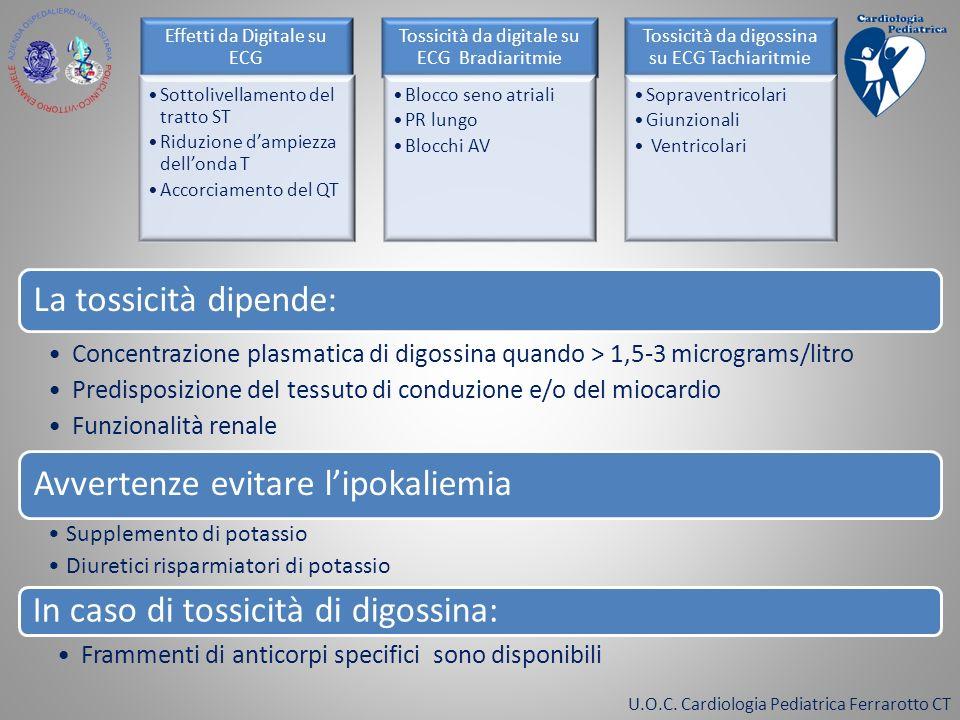 U.O.C. Cardiologia Pediatrica Ferrarotto CT Effetti da Digitale su ECG Sottolivellamento del tratto ST Riduzione dampiezza dellonda T Accorciamento de