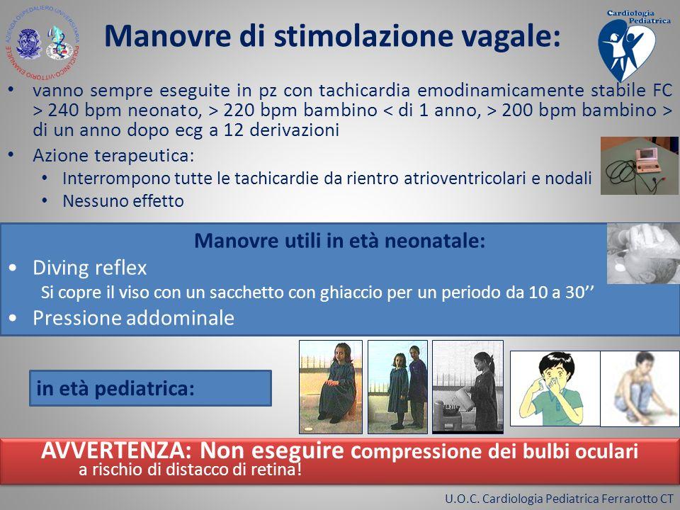 U.O.C. Cardiologia Pediatrica Ferrarotto CT Manovre di stimolazione vagale: vanno sempre eseguite in pz con tachicardia emodinamicamente stabile FC >