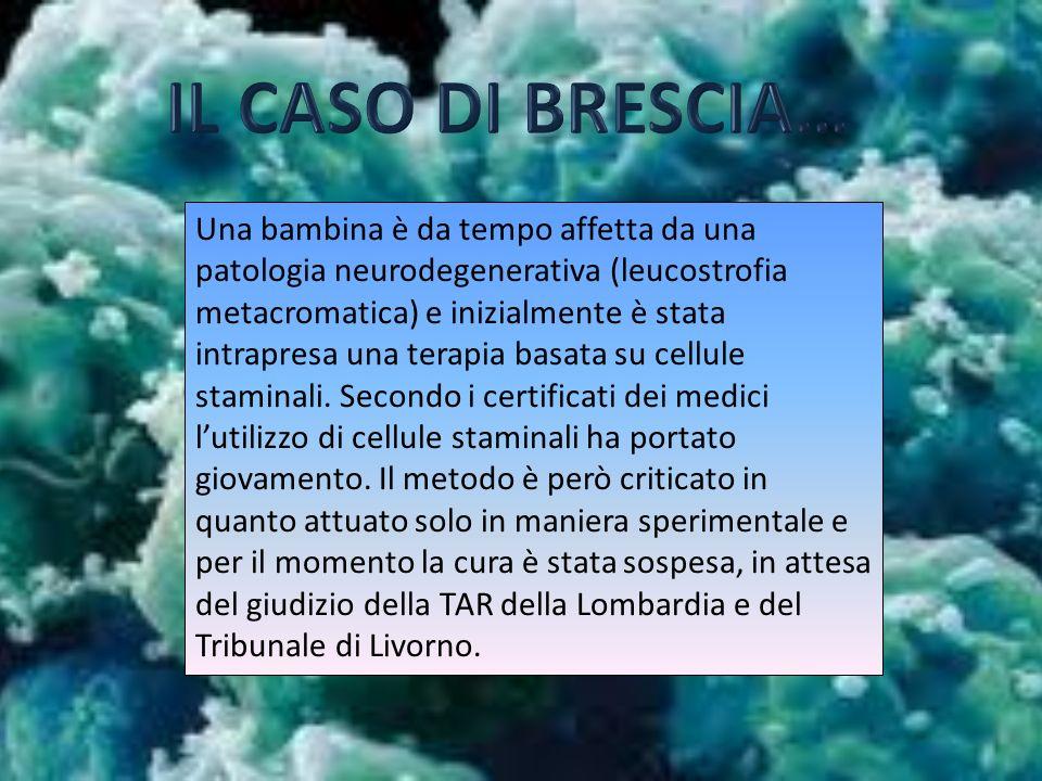 Una bambina è da tempo affetta da una patologia neurodegenerativa (leucostrofia metacromatica) e inizialmente è stata intrapresa una terapia basata su cellule staminali.