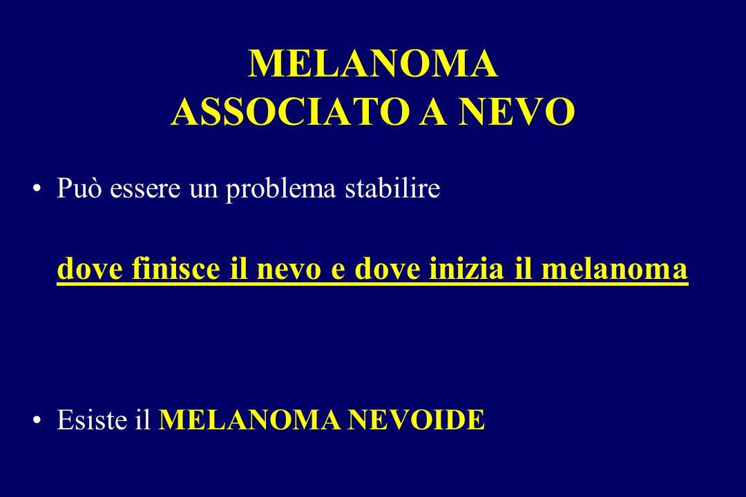 MELANOMA ASSOCIATO A NEVO Può essere un problema stabilire dove finisce il nevo e dove inizia il melanoma Esiste il MELANOMA NEVOIDE