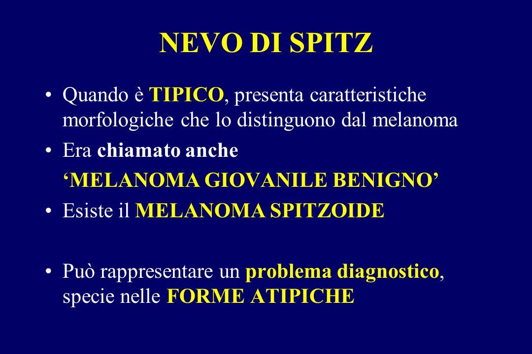 Quando è TIPICO, presenta caratteristiche morfologiche che lo distinguono dal melanoma Era chiamato anche MELANOMA GIOVANILE BENIGNO Esiste il MELANOM