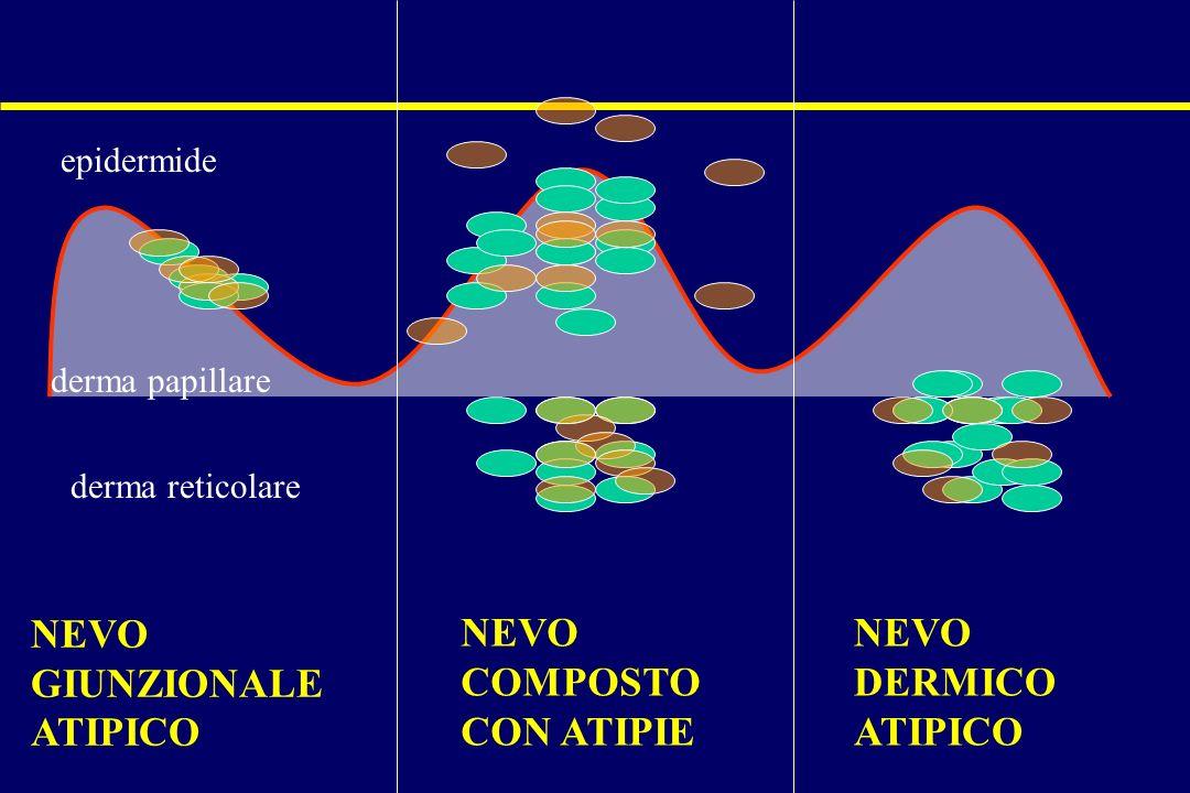 NEVO GIUNZIONALE ATIPICO NEVO COMPOSTO CON ATIPIE NEVO DERMICO ATIPICO epidermide derma papillare derma reticolare