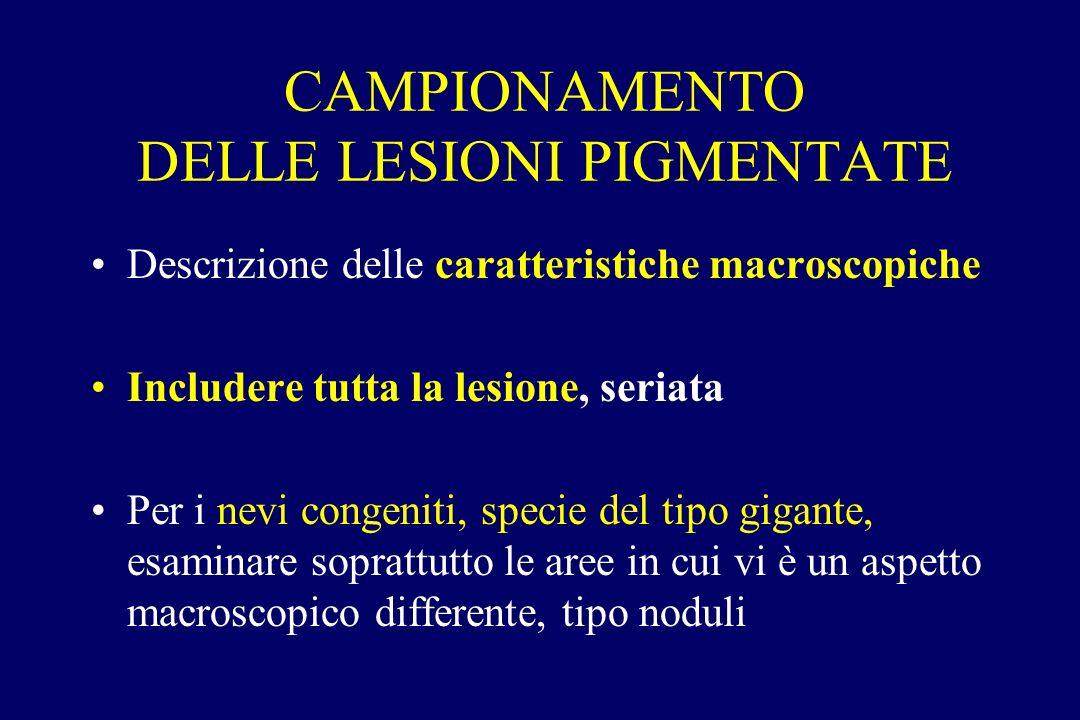 CAMPIONAMENTO DELLE LESIONI PIGMENTATE Descrizione delle caratteristiche macroscopiche Includere tutta la lesione, seriata Per i nevi congeniti, speci