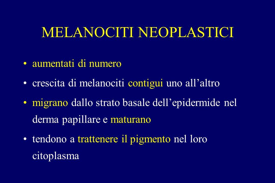 MELANOCITI NEOPLASTICI aumentati di numero crescita di melanociti contigui uno allaltro migrano dallo strato basale dellepidermide nel derma papillare