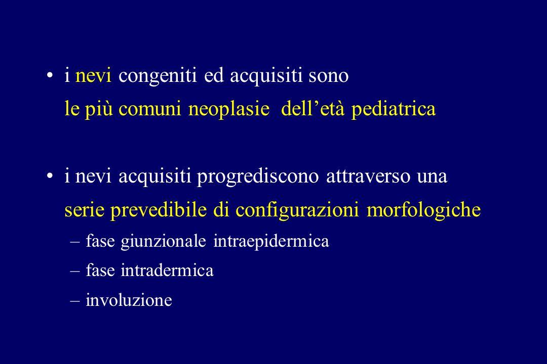 i nevi congeniti ed acquisiti sono le più comuni neoplasie delletà pediatrica i nevi acquisiti progrediscono attraverso una serie prevedibile di confi