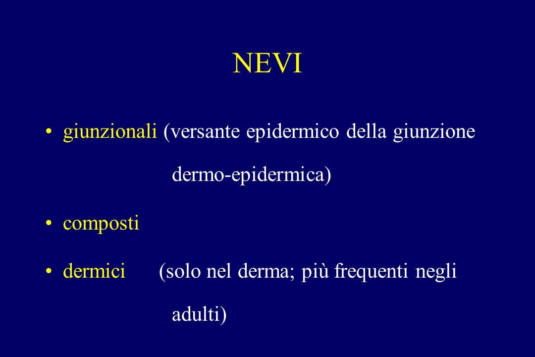 NEVI giunzionali (versante epidermico della giunzione dermo-epidermica) composti dermici (solo nel derma; più frequenti negli adulti)