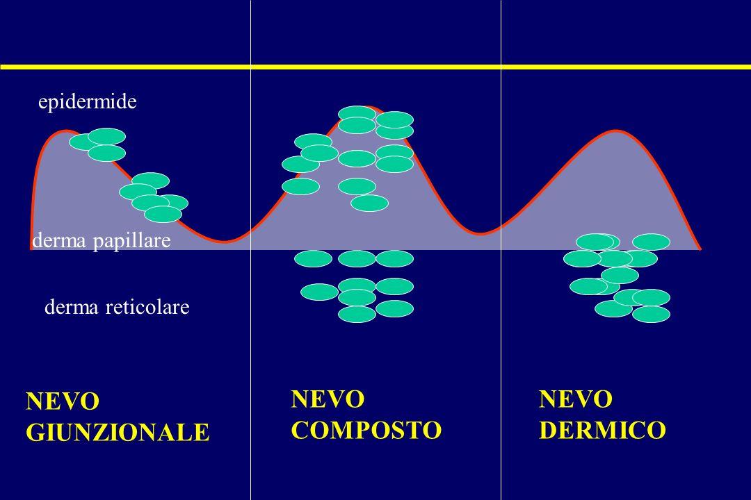 NEVO GIUNZIONALE NEVO COMPOSTO NEVO DERMICO epidermide derma papillare derma reticolare