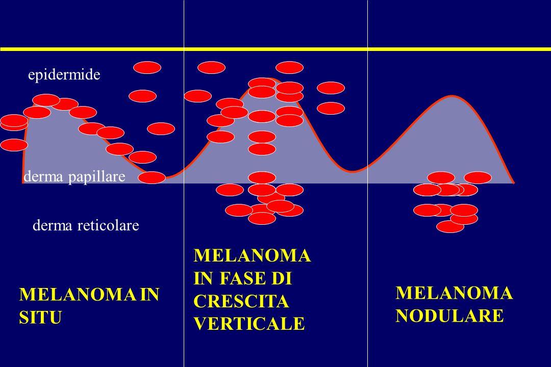 MELANOMA IN SITU MELANOMA IN FASE DI CRESCITA VERTICALE MELANOMA NODULARE epidermide derma papillare derma reticolare