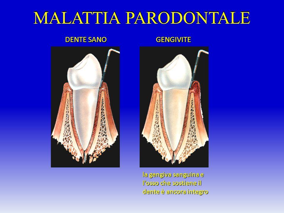 MALATTIA PARODONTALE DENTE SANO GENGIVITE la gengiva sanguina e l'osso che sostiene il dente è ancora integro