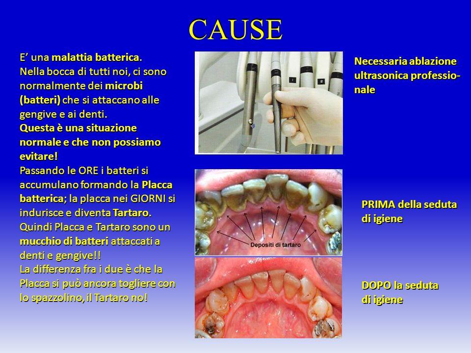 CAUSE E una malattia batterica. Nella bocca di tutti noi, ci sono normalmente dei microbi (batteri) che si attaccano alle gengive e ai denti. Questa è