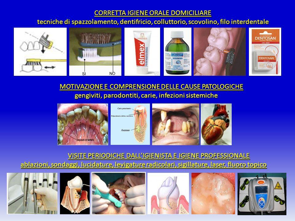 CORRETTA IGIENE ORALE DOMICILIARE CORRETTA IGIENE ORALE DOMICILIARE tecniche di spazzolamento, dentifricio, colluttorio, scovolino, filo interdentale