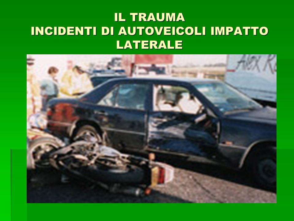 IL TRAUMA INCIDENTI DI AUTOVEICOLI IMPATTO LATERALE