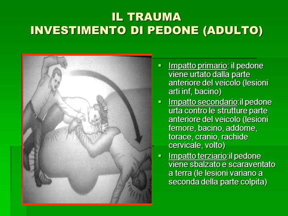 IL TRAUMA INVESTIMENTO DI PEDONE (ADULTO) Impatto primario: il pedone viene urtato dalla parte anteriore del veicolo (lesioni arti inf, bacino) Impatt
