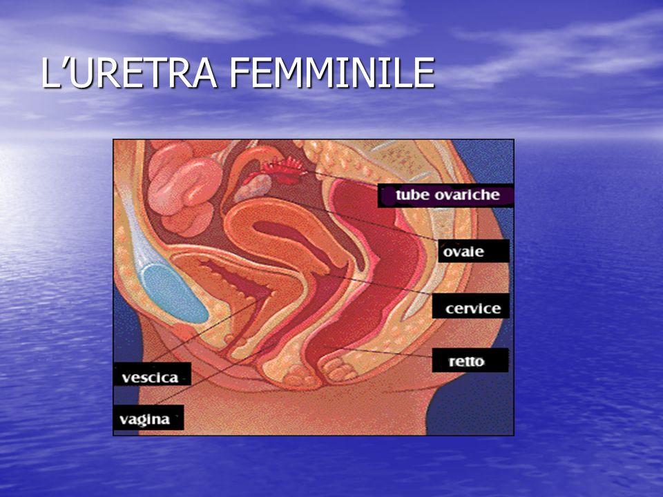 LURETRA FEMMINILE