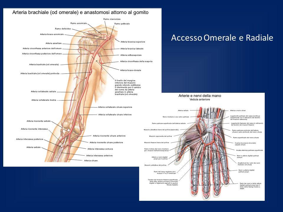 Accesso Omerale e Radiale