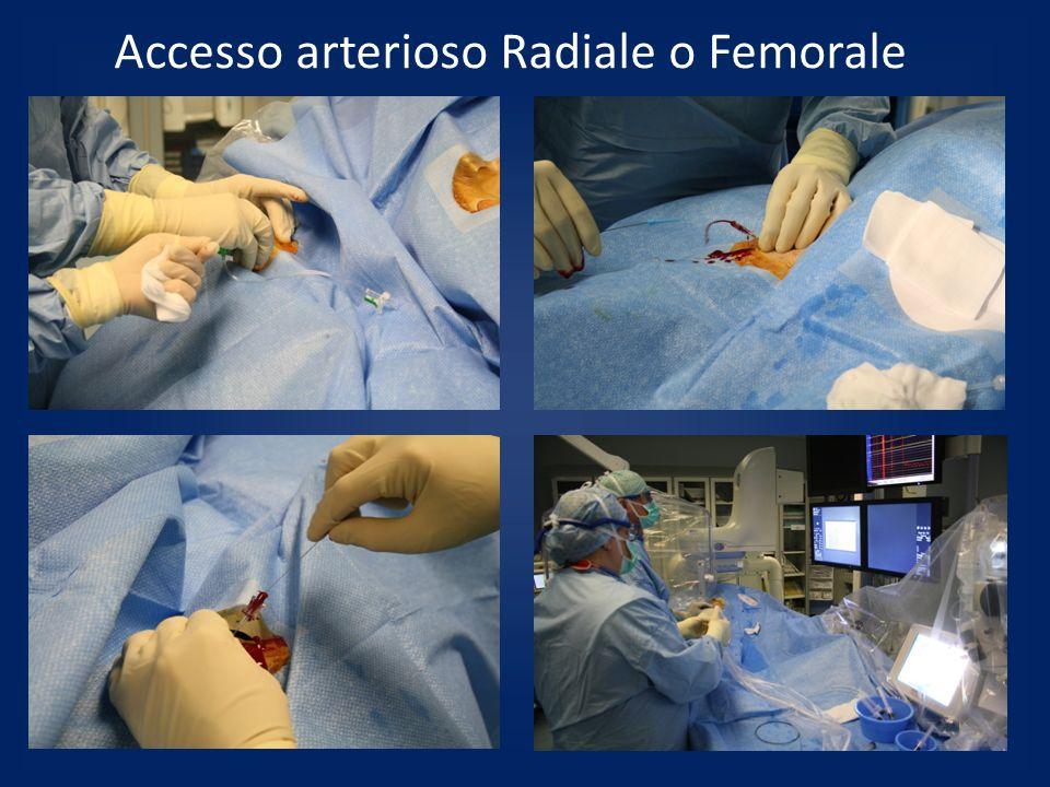 Accesso arterioso Radiale o Femorale