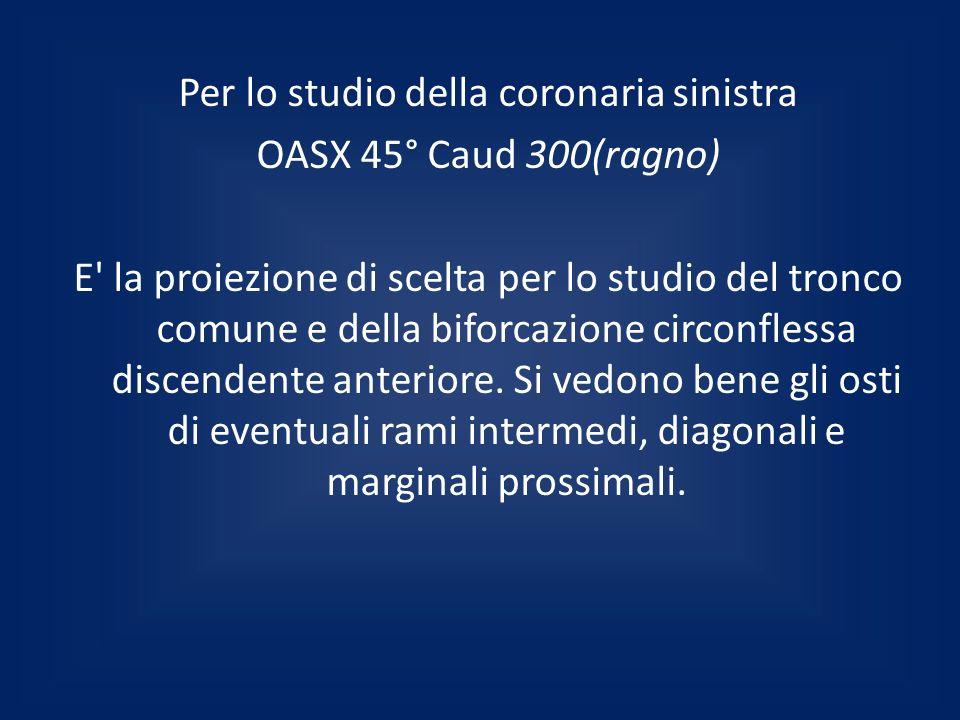 Per lo studio della coronaria sinistra OASX 45° Caud 300(ragno) E' la proiezione di scelta per lo studio del tronco comune e della biforcazione circon