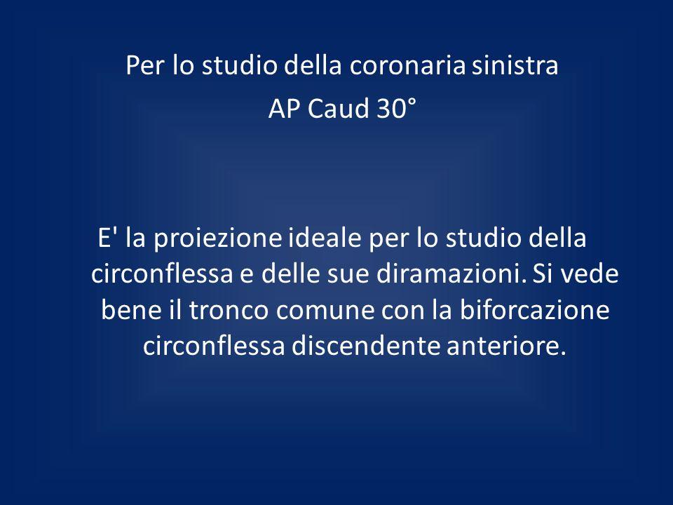 Per lo studio della coronaria sinistra AP Caud 30° E' la proiezione ideale per lo studio della circonflessa e delle sue diramazioni. Si vede bene il t