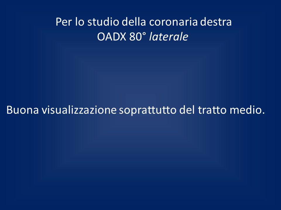 Per lo studio della coronaria destra OADX 80° laterale Buona visualizzazione soprattutto del tratto medio.