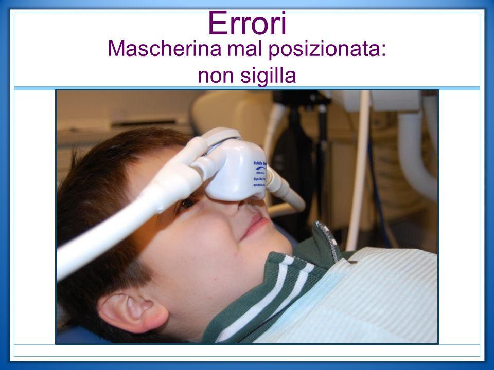 Errori Mascherina mal posizionata: non sigilla