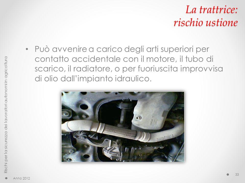 La trattrice: rischio ustione Può avvenire a carico degli arti superiori per contatto accidentale con il motore, il tubo di scarico, il radiatore, o per fuoriuscita improvvisa di olio dallimpianto idraulico.