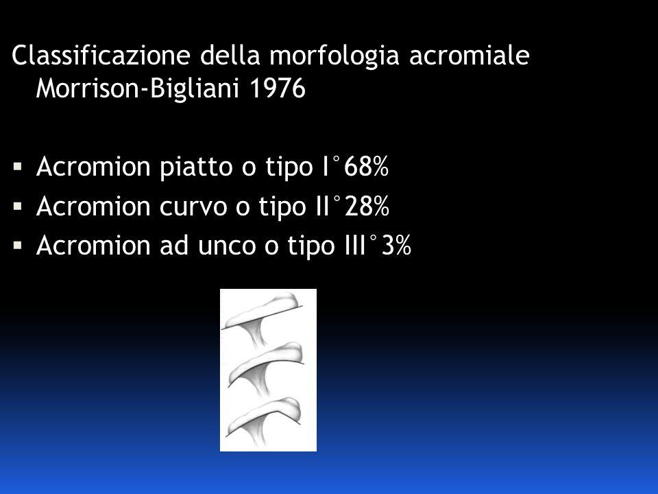 Classificazione della morfologia acromiale Morrison-Bigliani 1976 Acromion piatto o tipo I°68% Acromion curvo o tipo II°28% Acromion ad unco o tipo II