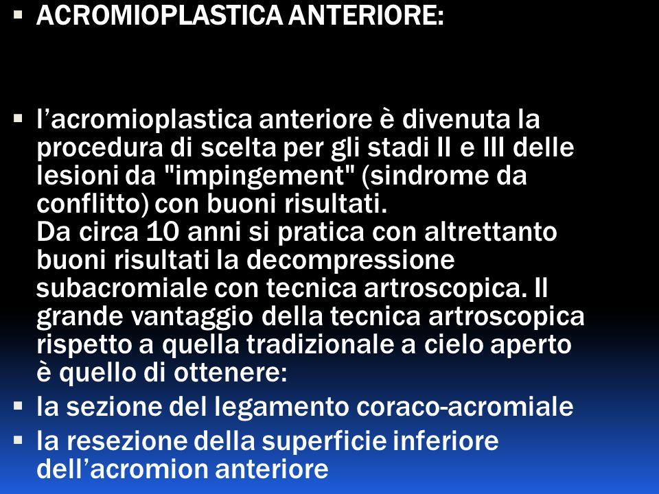 ACROMIOPLASTICA ANTERIORE: lacromioplastica anteriore è divenuta la procedura di scelta per gli stadi II e III delle lesioni da