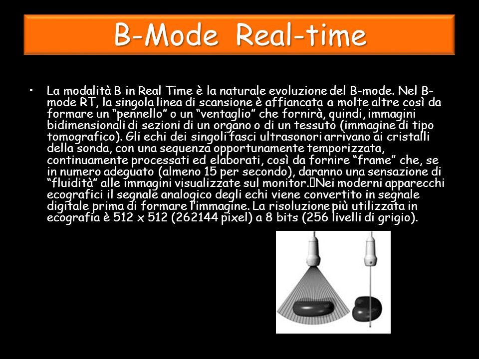B-Mode Real-time La modalità B in Real Time è la naturale evoluzione del B-mode.