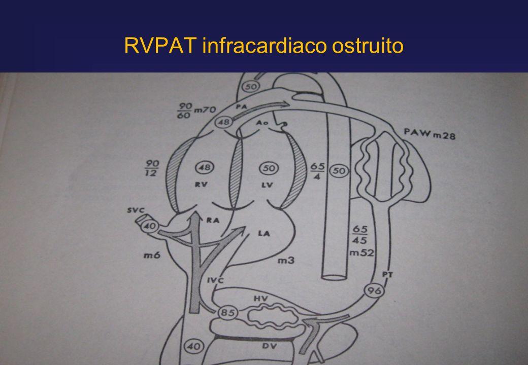 RVPAT infracardiaco ostruito