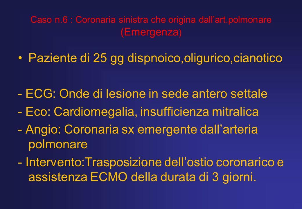 Caso n.6 : Coronaria sinistra che origina dallart.polmonare (Emergenza ) Paziente di 25 gg dispnoico,oligurico,cianotico - ECG: Onde di lesione in sed