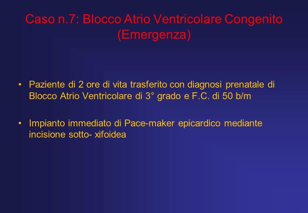 Caso n.7: Blocco Atrio Ventricolare Congenito (Emergenza) Paziente di 2 ore di vita trasferito con diagnosi prenatale di Blocco Atrio Ventricolare di
