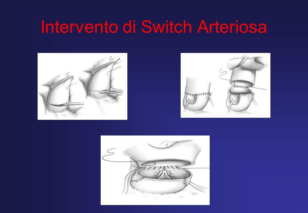 Caso n.2 ( Urgenza Programmata) Paziente di 3 giorni di vita, prematuro, Kg.2.100, con diagnosi di Coartazione aortica con ipoplasia dellarco, Dotto Dipendenza.