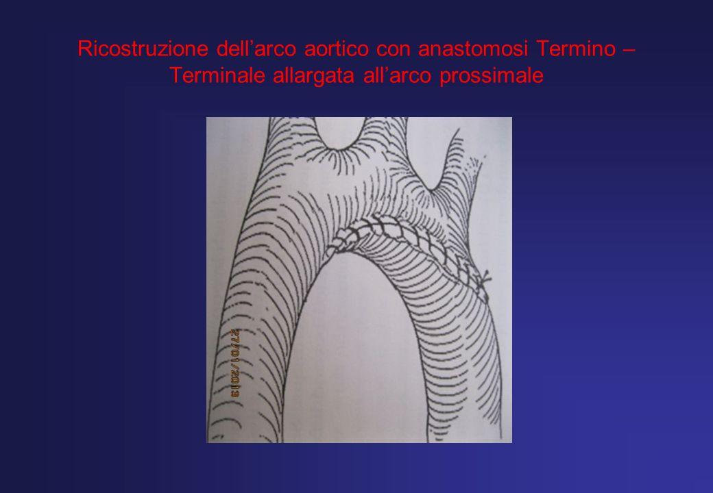 Ricostruzione dellarco aortico con anastomosi Termino – Terminale allargata allarco prossimale