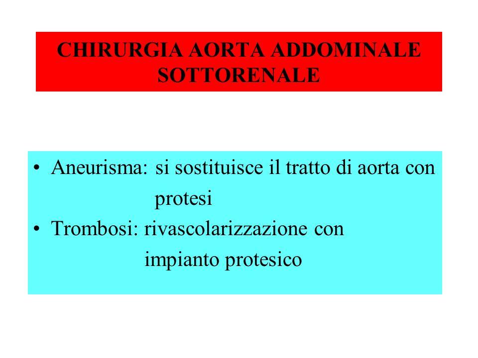 CHIRURGIA AORTA ADDOMINALE SOTTORENALE Aneurisma: si sostituisce il tratto di aorta con protesi Trombosi: rivascolarizzazione con impianto protesico