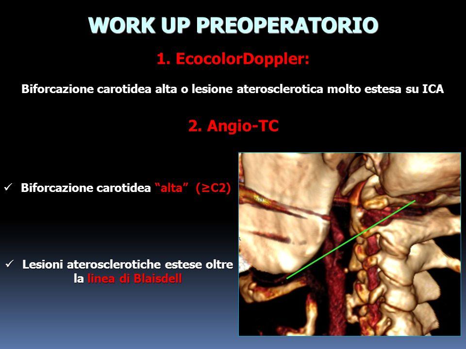 WORK UP PREOPERATORIO Biforcazione carotidea alta o lesione aterosclerotica molto estesa su ICA 1. EcocolorDoppler: 2. Angio-TC Biforcazione carotidea