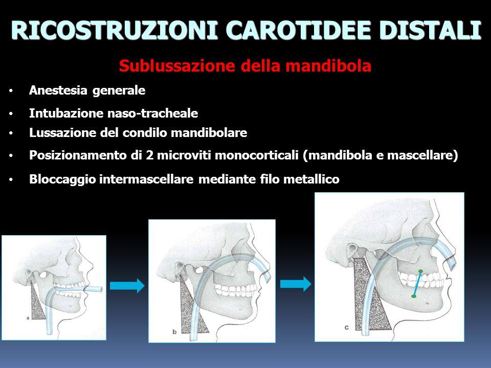 RICOSTRUZIONI CAROTIDEE DISTALI Sublussazione della mandibola Anestesia generale Anestesia generale Intubazione naso-tracheale Intubazione naso-trache
