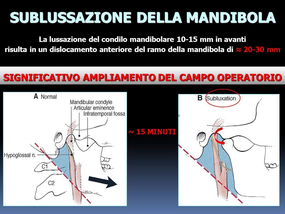 SUBLUSSAZIONE DELLA MANDIBOLA La lussazione del condilo mandibolare 10-15 mm in avanti risulta in un dislocamento anteriore del ramo della mandibola d
