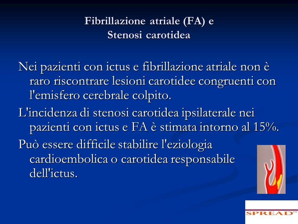 Fibrillazione atriale (FA) e Stenosi carotidea Nei pazienti con ictus e fibrillazione atriale non è raro riscontrare lesioni carotidee congruenti con