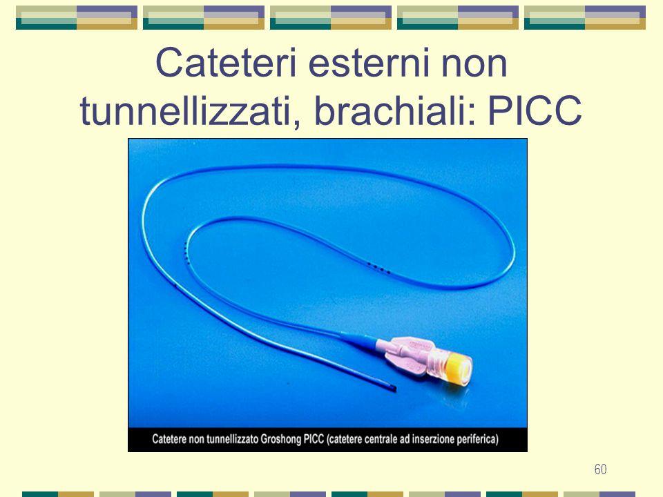 61 Cateteri esterni non tunnellizzati: CVC