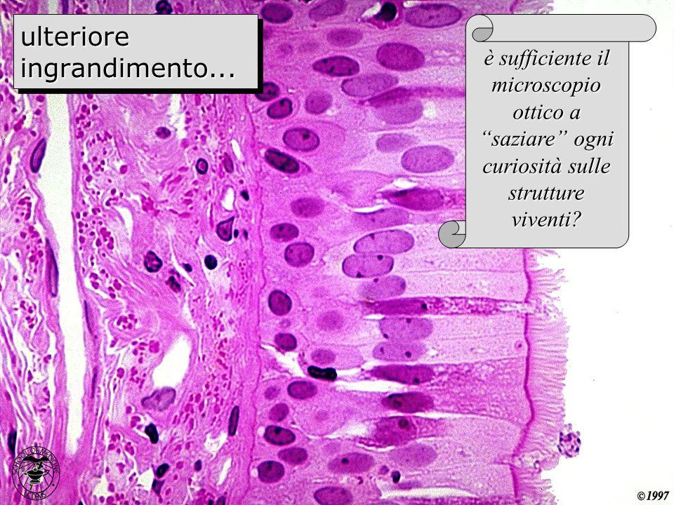 ulteriore ingrandimento... è sufficiente il microscopio ottico a saziare ogni curiosità sulle strutture viventi?
