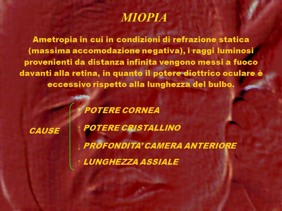 MIOPIA CAUSE Ametropia in cui in condizioni di refrazione statica (massima accomodazione negativa), i raggi luminosi provenienti da distanza infinita