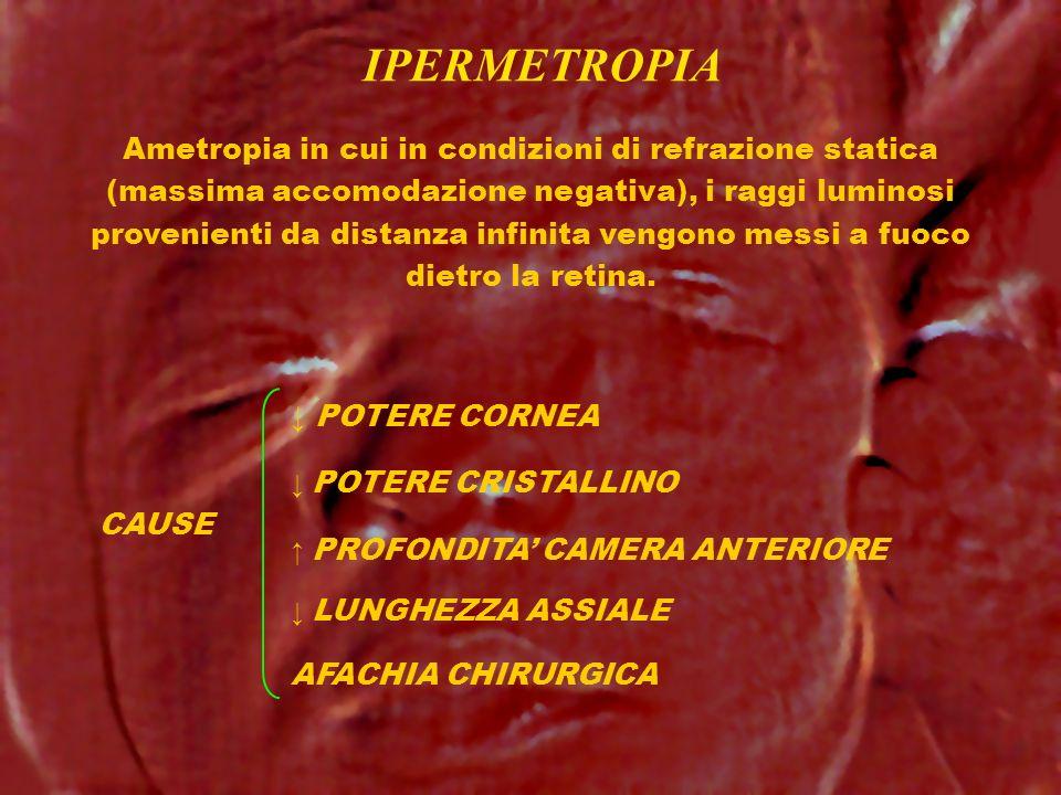 IPERMETROPIA CAUSE Ametropia in cui in condizioni di refrazione statica (massima accomodazione negativa), i raggi luminosi provenienti da distanza inf