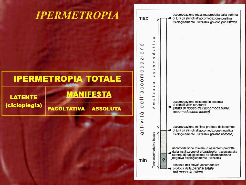 IPERMETROPIA IPERMETROPIA TOTALE LATENTE (cIcloplegia) MANIFESTA FACOLTATIVAASSOLUTA