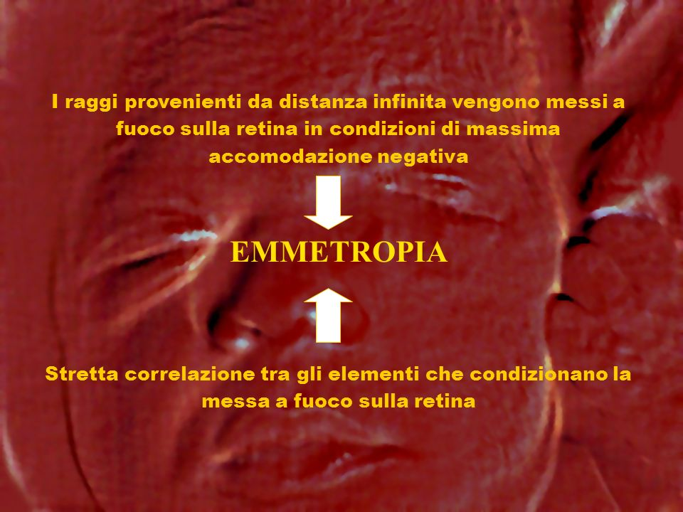 EMMETROPIA I raggi provenienti da distanza infinita vengono messi a fuoco sulla retina in condizioni di massima accomodazione negativa Stretta correla