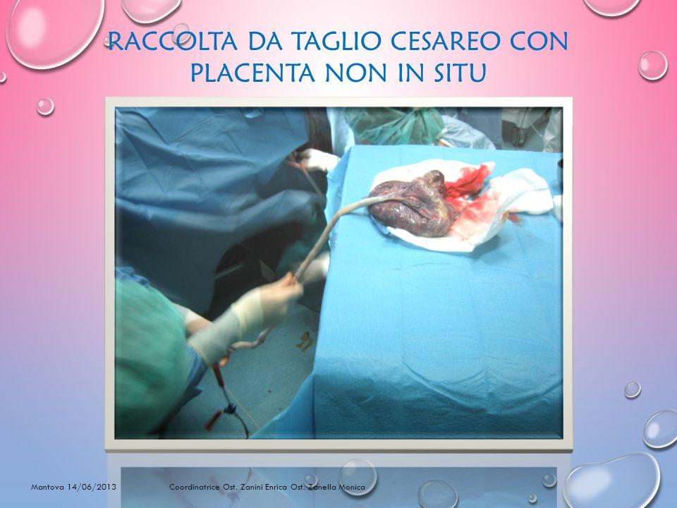 RACCOLTA DA TAGLIO CESAREO CON PLACENTA NON IN SITU Mantova 14/06/2013 Coordinatrice Ost. Zanini Enrica Ost. Zanella Monica
