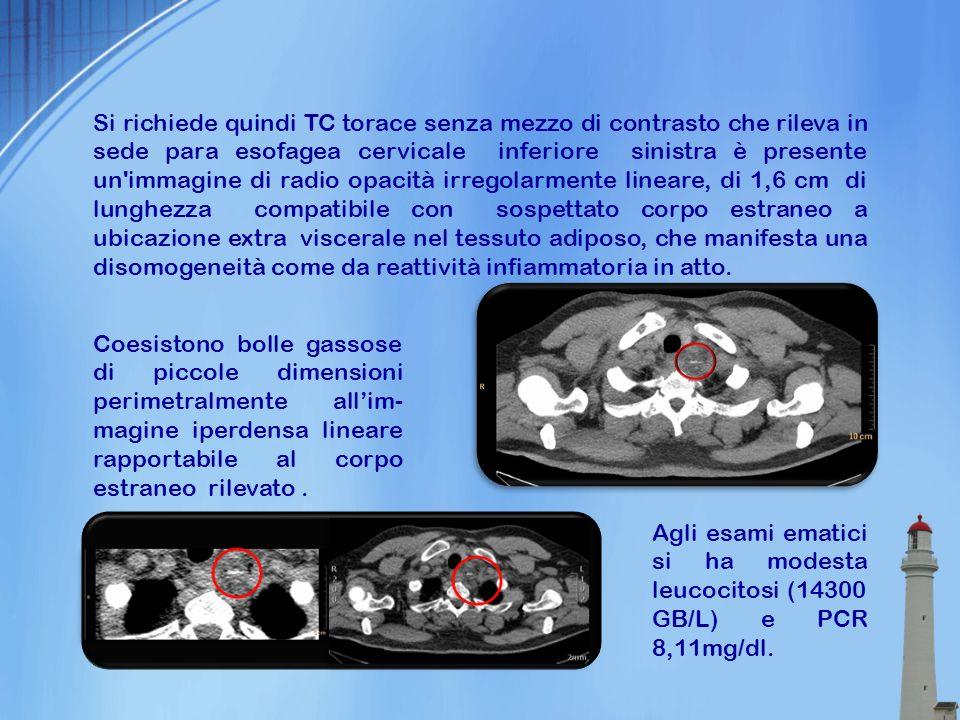 Si richiede quindi TC torace senza mezzo di contrasto che rileva in sede para esofagea cervicale inferiore sinistra è presente un'immagine di radio op
