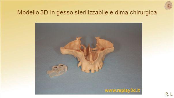 Modello 3D in gesso sterilizzabile e dima chirurgica www.replay3d.it