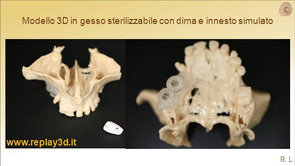 Modello 3D in gesso sterilizzabile con dima e innesto simulato www.replay3d.it