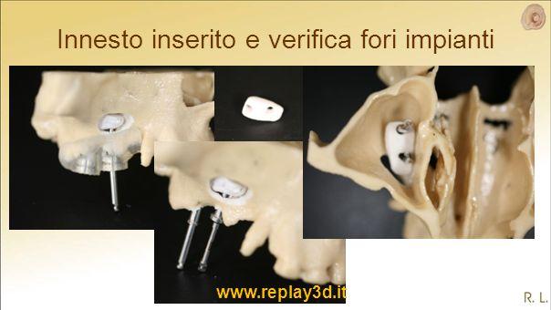 Innesto inserito e verifica fori impianti www.replay3d.it